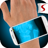 X-Ray Hand Fracture